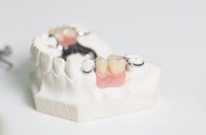 most zębowy